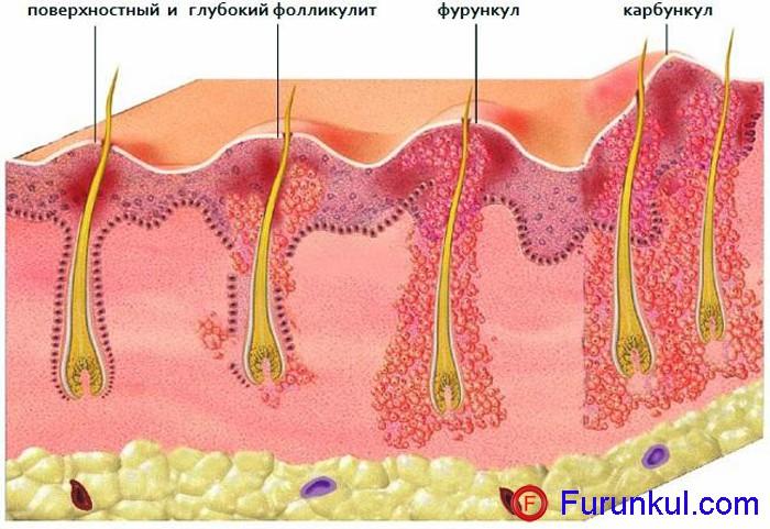 Причины фурункулов на попе