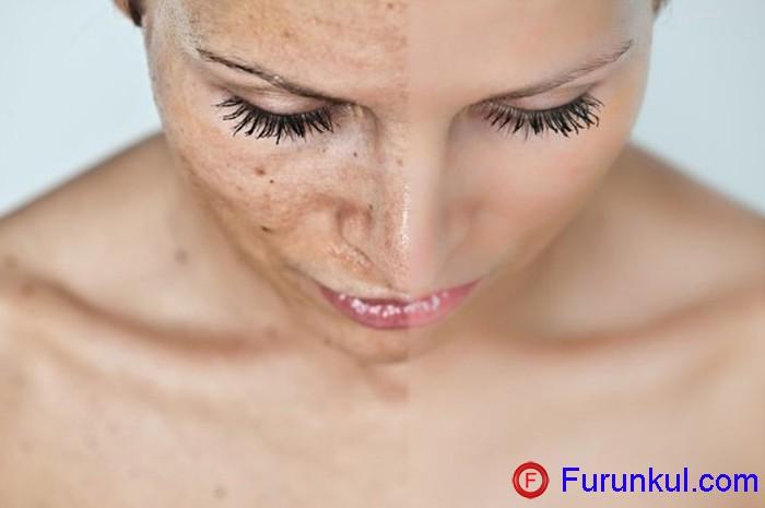 Как образуются шрамы от фурункулов