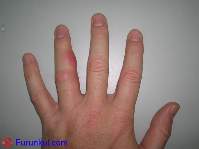 Что такое фурункул на пальце