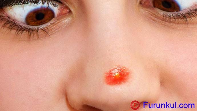 Какие симптомы дает фурункул в носуКакие симптомы дает фурункул в носу