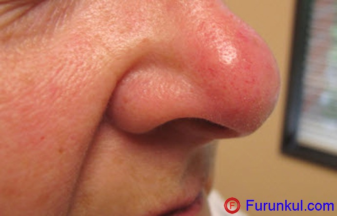 Стадии фурункула носа