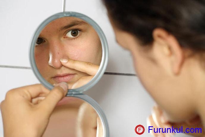 Как лечить фурункул на переносице