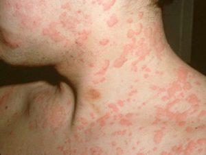 какие бывают пятна при аллергии фото