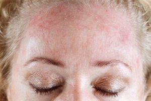 Аллергия в виде красных пятен на теле