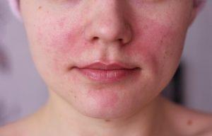 какие пятна бывают при аллергии фото