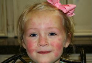 Аллергический дерматит у грудничка