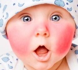 Фото диатеза на лице и щеках у ребенка