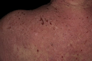 Атопический дерматит у взрослого