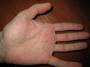Симптомы и лечение дрожжевого грибка в организме
