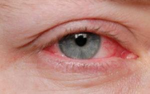 Причины и лечение когда чешутся веки глаз