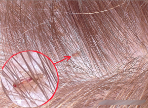 Як виглядають воші на голові у дитини