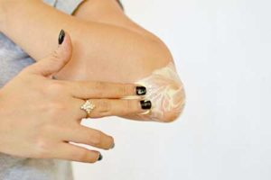 Причина шелушения кожи на локтях
