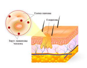 Кондиломатоз у женщин симптомы