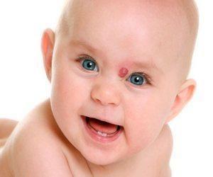 Гемангиома у новорожденных - причины возникновения ( фото)