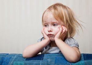 Лечение инфекционной эритемы у ребенка