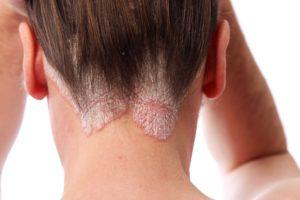 Симптомы и лечение микоза кожи