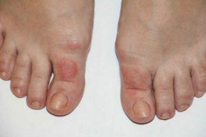 как выглядит грибок на пальцах ног