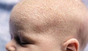 Шелушение кожи у новорожденного на теле