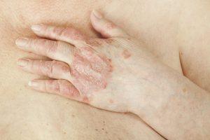 Признаки и методы лечения псориаза у взрослых