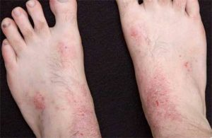 Симптомы псориаза на ногах и лечение на начальной стадии