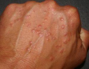Пупырышки на пальцах ног