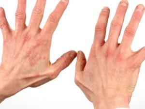 Прыщики на пальцах рук