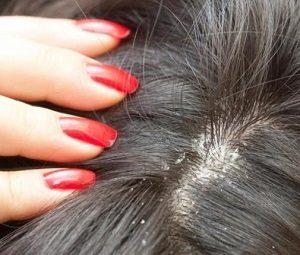 Прыщ на голове в волосах болит