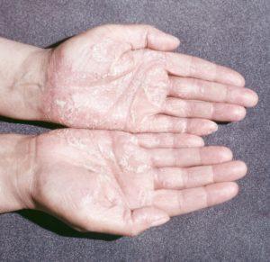 Признаки кератодермии на ладонях рук и подошве ног