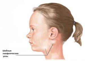 Первые признаки наличия лимфомы Неходжкинского