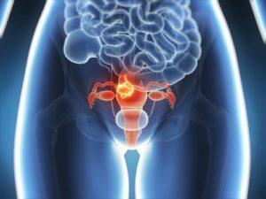 Причины и лечение фибромы матки