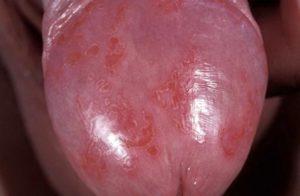 Симптомы эритроплазии Кейра и причины болезни