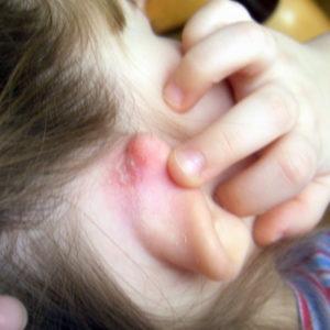 Что такое мокнущий дерматит и как его лечить