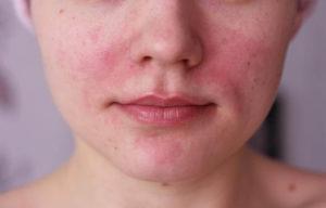 Причины возникновения остиофолликулита