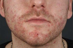 При каких заболеваниях применяют Линимент синтомицина