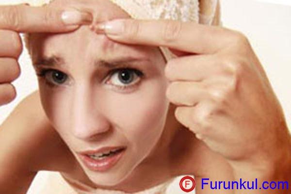 Почему появляются фурункулы на лице
