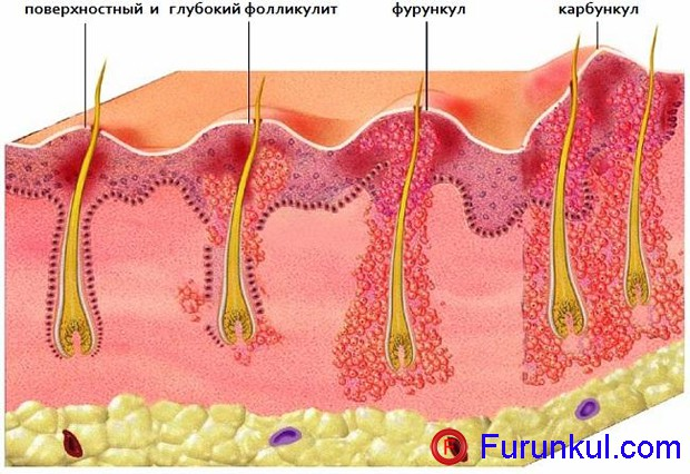 Что такое фурункул на животе