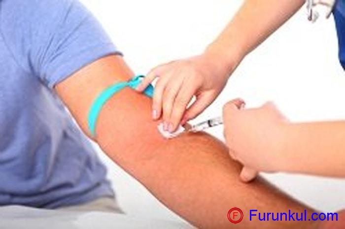Самостоятельное переливание крови при фурункулахСамостоятельное переливание крови при фурункулах
