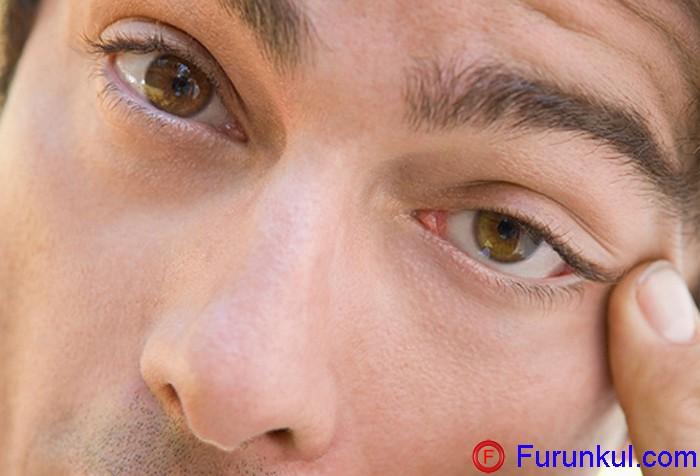 Фурункул на веке глаза лечение