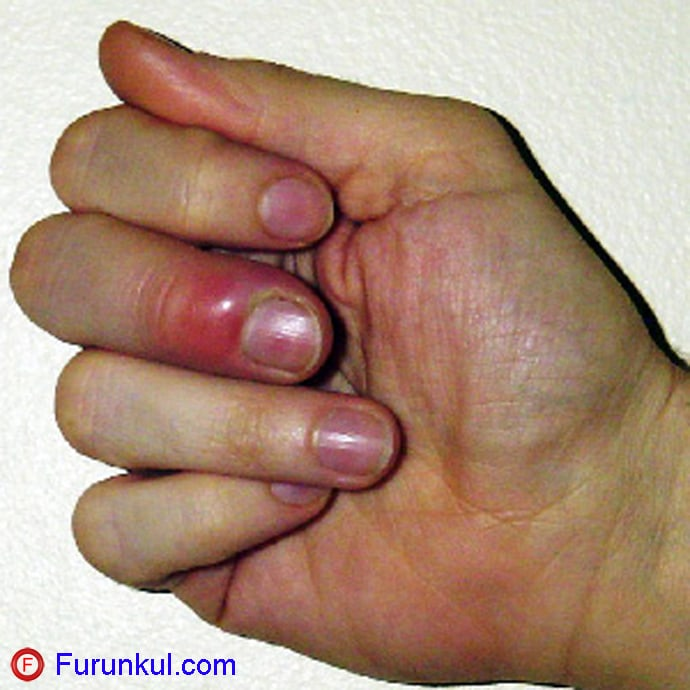 Фото фурункула на пальце
