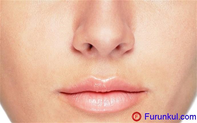 Откуда берется фурункул в носу