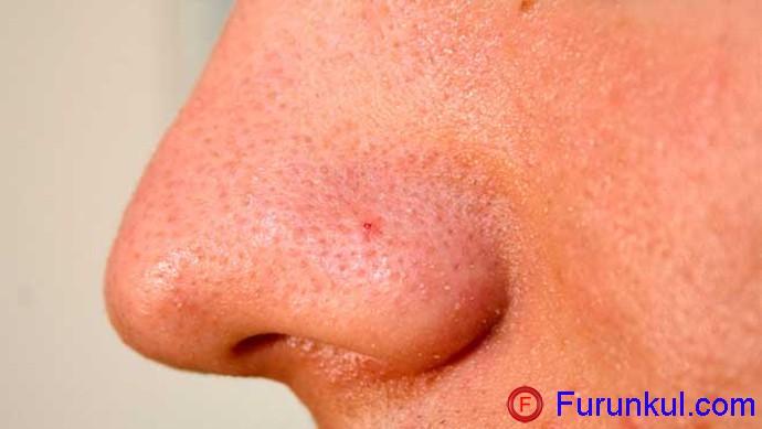 Чем опасен фурункул в носу
