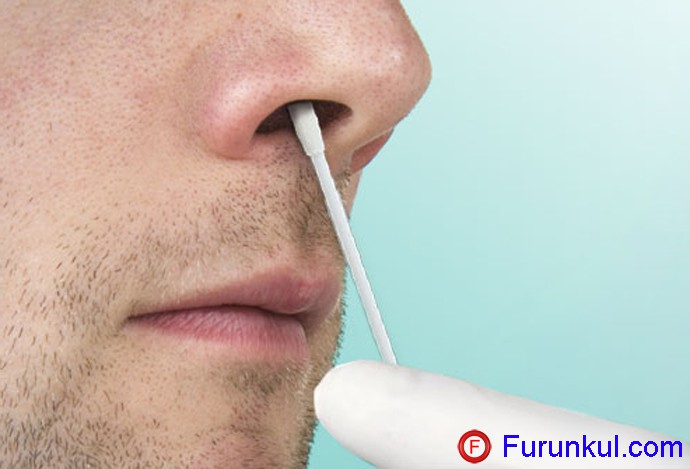 Как лечить фурункул в носу