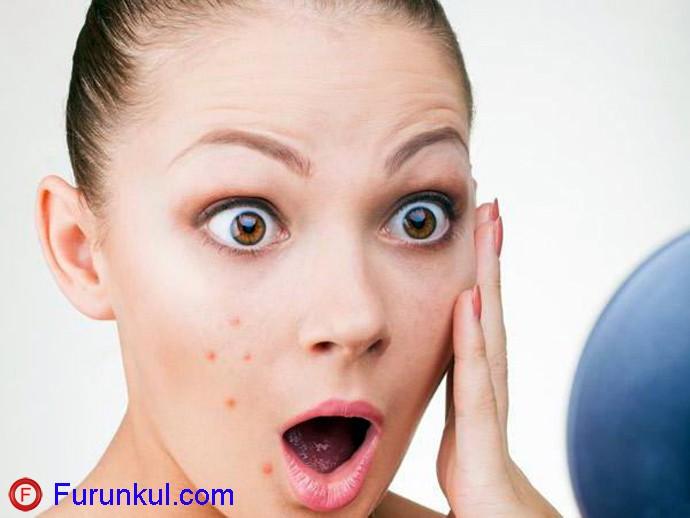 Что нельзя делать при фурункуле на щеке