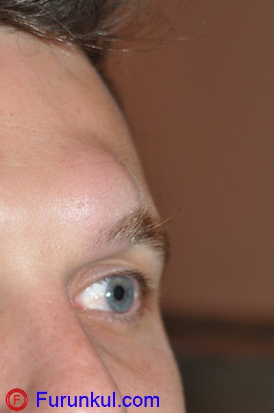 Народная медицина для лечения фурункула на брови
