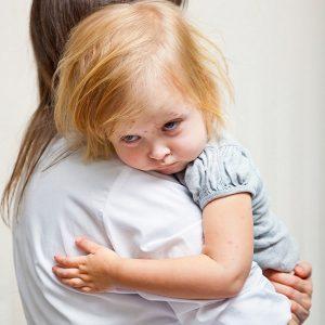 Ветрянка у детей - симптомы, лечение и фото