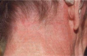 аллергический контактный дерматит