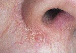 начальная стадия базалиомы кожи