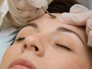 Результаты механической и химической чистки лица