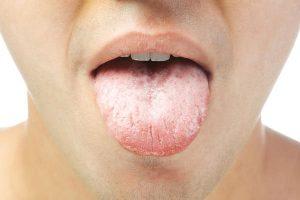 Чем лечить дрожжевой грибок у женщин