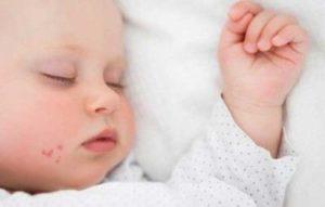 Симптомы и лечение герпесной инфекции у ребенка